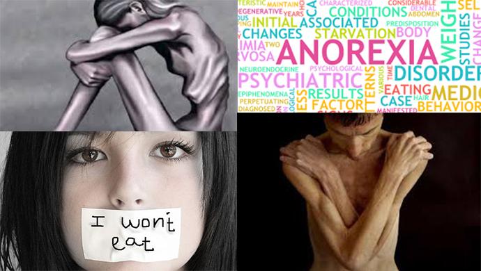 Hati Hati!!! Maraknya Penyakit Anoreksi Nervosa Di Kalangan Wanita Masa Kini