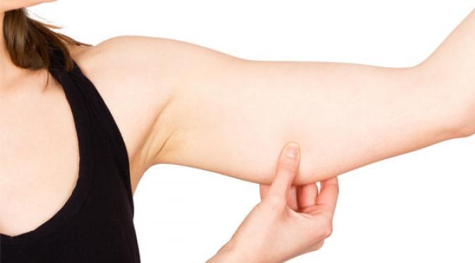 Cara Mencegah Kulit Tubuh Kendur Setelah Berat Badan Turun Drastis